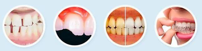 Виниры для зубов
